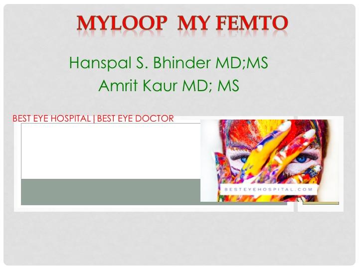 best cataract doctor